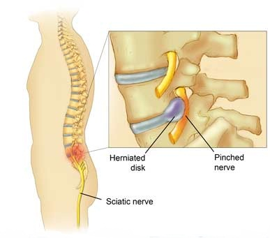 Pinched Nerve treatment Sydney